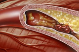 Blocked Coronary Artery, Artwork Poster by John Bavosi
