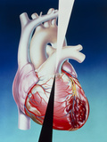 Artwork of Heart Attack Due To Atherosclerosis Photographic Print by John Bavosi