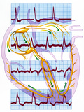 Cardiac Arrhythmia with Heart And ECGs Photographic Print by John Bavosi