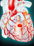 Illustration of Heart Showing the Cause of Angina Photographic Print by John Bavosi