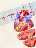 Artwork of Heart & ECG Trace In Heart Failure Photographic Print by John Bavosi