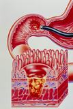 Artwork of Duodenal Ulcer with Magnified View Photographic Print by John Bavosi