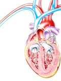 Artwork of Heart In Congestive Heart Failure Photographic Print by John Bavosi