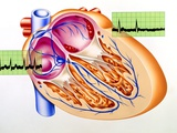 Atrial Fibrillation, Artwork Photo by John Bavosi