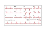 ECGs of a Normal Heart Rate, Artwork Photographic Print by Peter Gardiner
