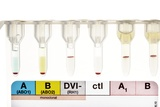 Rhesus Test on Blood: Positive Result Photo by Doncaster and Bassetlaw