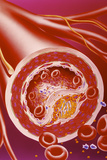 Narrowed Artery Due To Cholesterol Photographic Print by John Bavosi