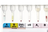 Rhesus Test on Blood: Negative Result Prints by Doncaster and Bassetlaw