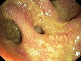 Bowel Disease In the Colon Photo by  Gastrolab