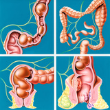 Causes of Constipation Premium Photographic Print by John Bavosi