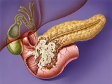 Pancreatic Cancer, Artwork Posters by John Bavosi