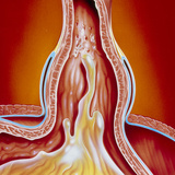 Art of Gastro-oesophageal Reflux In Hiatus Hernia Photographic Print by John Bavosi