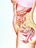 Artwork Showing Sites of Endometriosis In Body Photo by John Bavosi