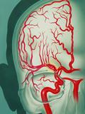 Cerebral Vascular Accident (CVA): Embolism Artwork Prints by John Bavosi