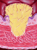 Bladder Cancer Posters by John Bavosi
