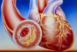 Illustration of Cardiac Failure Due To Bl Photographic Print by John Bavosi
