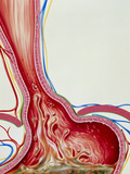 Art of Gastro-oesophageal Reflux In Hiatus Hernia Posters by John Bavosi