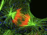 Cell In the Anaphase Stage of Mitosis Photographic Print by Thomas Deerinck