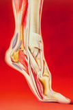 Artwork Showing Calcaneal Spur And Foot Pain Photographic Print by John Bavosi