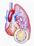 Artwork of Lung Oedema In Heart Failure Photographic Print by John Bavosi