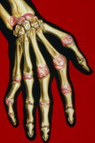 Illustration of Rheumatoid Arthritis In Hand Photographic Print by John Bavosi