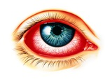 Artwork Showing Eye with Allergic Conjunctivitis Photographic Print by John Bavosi