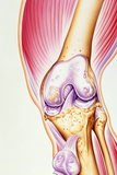 Artwork of Osteoarthritis of Knee Joint Photographic Print by John Bavosi