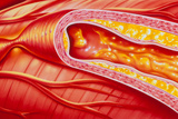 Illustration of Coronary Artery Atherosclerosis Posters by John Bavosi