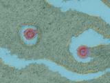 Porcine Endogenous Retrovirus, TEM Photo by Dr. Klaus Boller