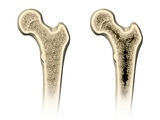 Osteoporosis, Artwork Photographic Print by Henning Dalhoff