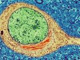 Alzheimer's Disease Brain Cell, TEM Reproduction photographique par Thomas Deerinck