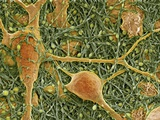 Nerve Cells And Glial Cells, SEM Prints by Thomas Deerinck