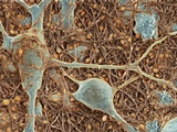 Nerve Cells And Glial Cells, SEM Photo by Thomas Deerinck