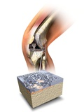 Damaged Knee, Artwork Photographic Print by Henning Dalhoff