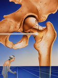 Osteoporosis Photographic Print by John Bavosi