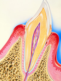 Artwork of Tooth Showing Periodontal Disease Photographic Print by John Bavosi