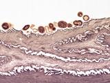 Tongue Bacteria, TEM Prints by Thomas Deerinck