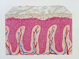Artwork of Psoriasis of Skin Epidermis In Section Prints by John Bavosi