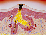 Artwork of Acne, Showing Blackhead Development Photographic Print by John Bavosi