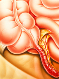 Artwork of An Appendix with Appendicitis Posters by John Bavosi