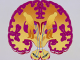 Artwork of Brain Depicting Parkinson's Disease Photographic Print by John Bavosi