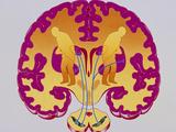 Artwork of Brain Depicting Parkinson's Disease Posters by John Bavosi