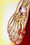 Artwork of Gout: Tophus At Base of the Big Toe Photo by John Bavosi