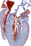 Dissected Heart, Light Micrograph Posters by Steve Gschmeissner