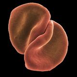 Red Blood Cells Premium Photographic Print by Steve Gschmeissner