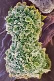 Cervical Cancer Cells Dividing, SEM Photo by Steve Gschmeissner