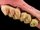Mouse Molars, SEM Poster by Steve Gschmeissner