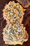 Cervical Cancer Cells Dividing, SEM Prints by Steve Gschmeissner