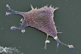 Sarcoma Cancer Cell Prints by Steve Gschmeissner