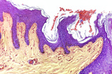 Skin Layers, Light Micrograph Print by Steve Gschmeissner